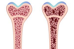 Osteoporosis is bone demineralization