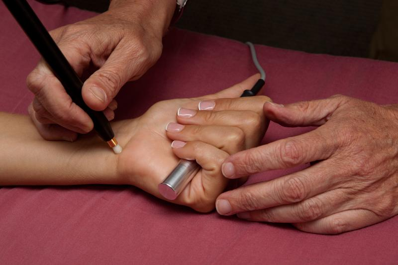 non-needle acupuncture